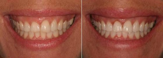 Laser Gum Lift and Whitening