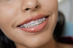 How to improve your smile with a cosmetic dentistry