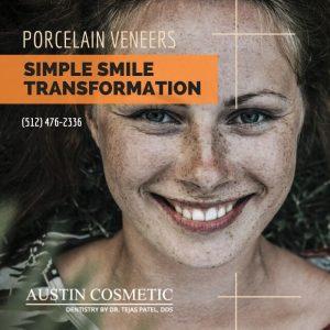 Top 5 Reasons to get Porcelain Veneers at Austin Cosmetic